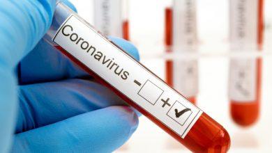 Photo of Cuba incrementa la aplicación test de diagnóstico para detectar casos de Covid-19